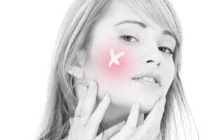 Akne i prištići