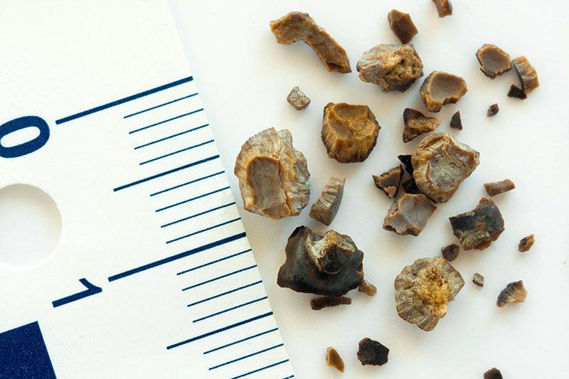 Kako olakšati izbacivanje bubrežnog kamenca?