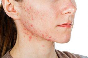 Liječenje cističnih akni