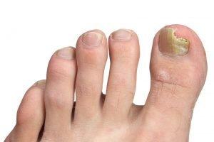 Gljivične infekcije na noktima