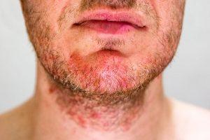 Kako liječiti seboreični dermatitis?