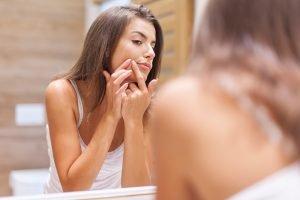 Kako ukloniti akne?
