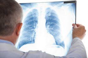 Plućna embolija i kako je liječiti