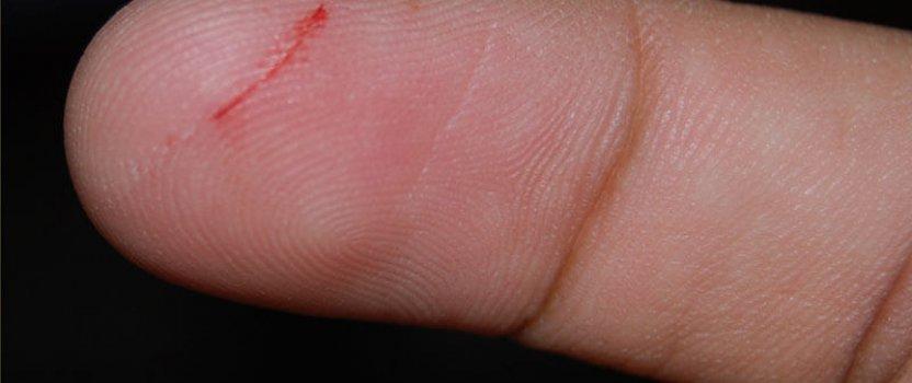 Posjekotine i zacjeljivanje rana