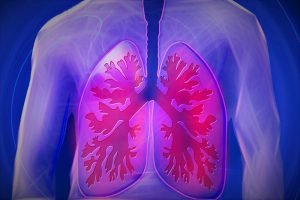 Koliko je opasna upala pluća?